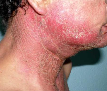 Es el daño de las células superficiales y los vasos sanguíneos de la piel por la acción directa de la radioterapia. Aparece a partir  de la segunda semana de administrarse la radioterapia y desaparece a los dos o tres meses de la finalización del tratamiento. En la face aguda consiste en la aparición de eritema(enrojecimiento) y descamación cutánea. En su face crónica. consiste en cambios en la pigmentación y textura de la piel, su  endurecimiento o engrosamiento (poiquilodermia), Aparición de piel de naranja y/o pérdida de vello y cabello. S&M CENTROS CAPILARES