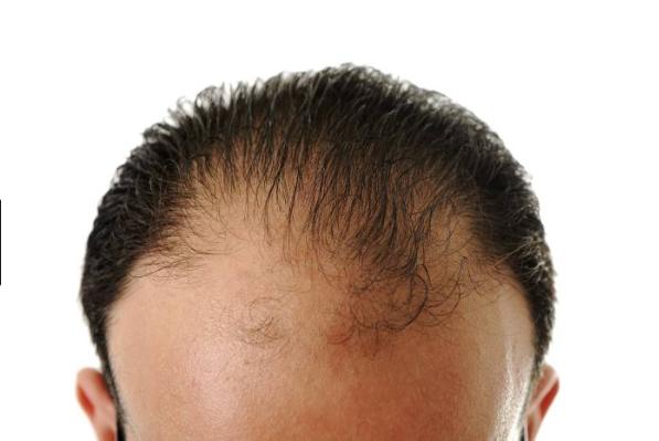 La alopecia androgénica es la más común de este tipo de enfermedad, afectando a un 95% de los hombres que padecen alopecia. Conocida también como alopecia androgenética, prematura o calvicie común, es generalmente un tipo de alopecia masculina y, en la mayoría de los casos, una alopecia hereditaria. S&M CENTROS CAPILARES