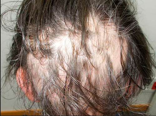La alopecia difusa es la pérdida grave de pelo que suele estar producida por enfermedades crónicas, causas de estrés o parto. El pelo entra en la fase telogénica durante más tiempo de lo normal; y en esta fase del ciclo el pelo deja de crecer y los folículos pilosos dejan de producir. Este tipo de alopecia no suele conllevar una calvicie total y a pesar de tener fases más o menos agudas (puede afectar hasta el 90% del cabello)es reversible cuando se elimina la causa que ha desencadenado la caída del cabello. S&M CENTROS CAPILARES