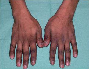 Los primeros síntomas son fragilidad y aparición de estrías en las uñas con aumento de rugosidad.  Aparece sobre todo en los dedos de las manos y con menor frecuencia en los pies . S&M CENTROS CAPILARES