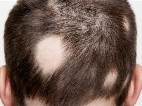 ¡Distintos tipos de alopecia!