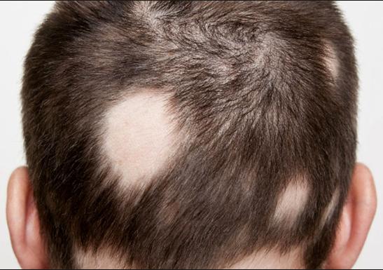 Es un tipo de alopecia que se reconoce por tener forma de parches redondos en la cabeza. En general, suele estar limitado a un punto pero puede extenderse también a una caída del cabello en toda la cabeza (alopecia areata total) o en todo el cuerpo (alopecia universal), como veremos más adelante.  Causas:  Las causas de esta alopecia no están claramente determinadas, pero se sabe que suele estar relacionada con el estrés emocional o con alteraciones autoinmunes; y no hace distinción de sexo ni de edad. En la alopecia areata, es el propio cuerpo el que ataca a los folículos pilosos, parando así el crecimiento y generación de nuevos cabellos. Si bien es cierto que estos no quedan totalmente destruidos (por lo que el pelo puede volver a crecer), también se sabe que este tipo de alopecia suele reaparecer en períodos regulares. Aún no se conoce cómo prevenir la alopecia areata, pero se conocen algunos tratamientos capilares para poder acelerar su desaparición. Todos están relacionados con inyecciones de corticoides, suplementos nutricionales o activos como el Redensyl, que actúa directamente sobre los folículos pilosos reactivando sus células madre. En estos casos también suele ser útil la psicoterapia, sobre todo cuando existe una causa inicial de estrés emocional que haya desencadenado la alopecia areata. S&M CENTROS CAPILARES