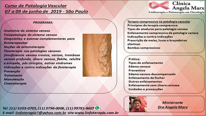 curs de tratament de la varicoză