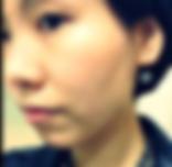 hydra facial