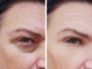 female facial wrinkles before and after