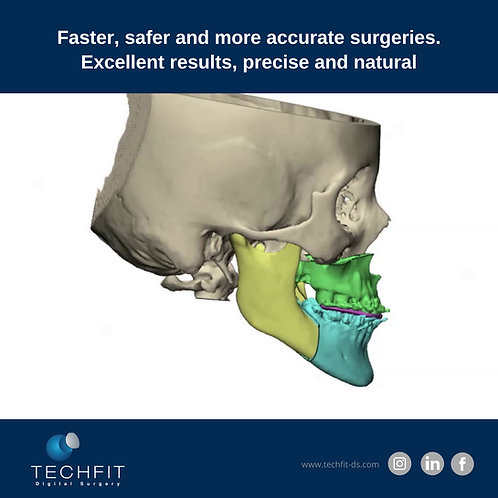 Orthognatic Surgical 3D Digital Planning