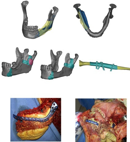 3D planning of mandible reconstruction with Fibula Free Flap
