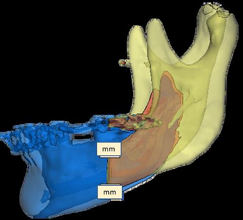3D printed Mandibular Anatomical Model