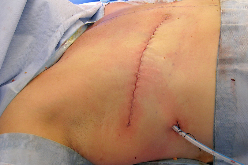 post-mastectomy-scars.jpg