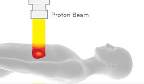 Proton Therapy- A Less Harmful Option?