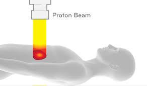 Proton Therapy- A Less Harmful Option?