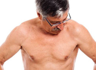 Male Breast Cancer and the BRCA Genetic Mutation