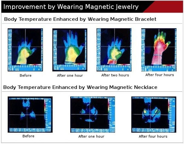 Improvement by wearing magnetic bracelet