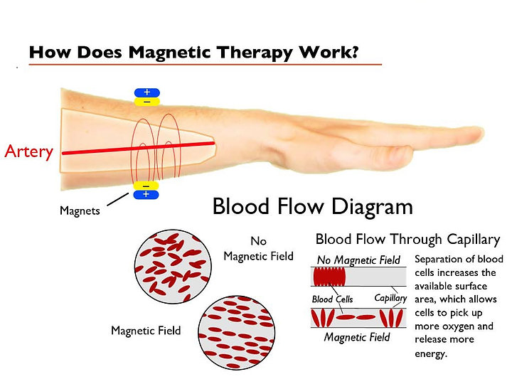 How does Magnetic Therapy works Australia