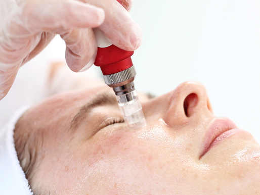 A guide to Micro-needling