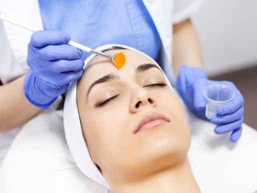 Chemical Peels now available at Lipcouture