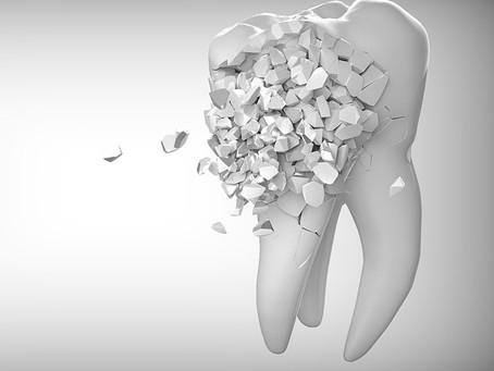 6 Erros que podem prejudicar suaa saúde bucal!