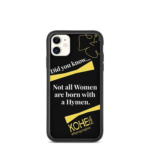 Hug me Iphone phone case