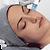 Diamond Peeling Facial