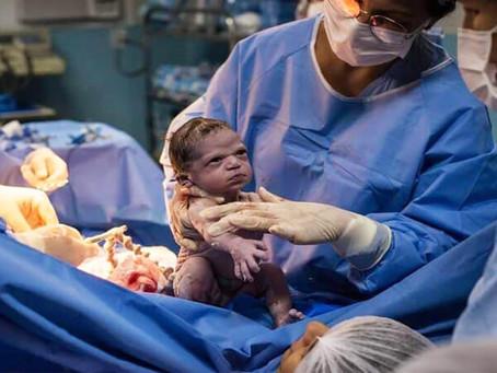 Η ιστορία πίσω από τη φωτογραφία του πιο σοβαρού μωρού που έγινε viral (video)