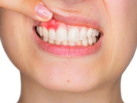 Uma boca que não está sendo higienizada corretamente , pode surgir cáries, gengiva ficar inflamada,