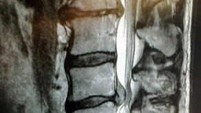 Lower Back Pain And Parkinson's Disease