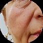 Cara mencegah penuaan dini