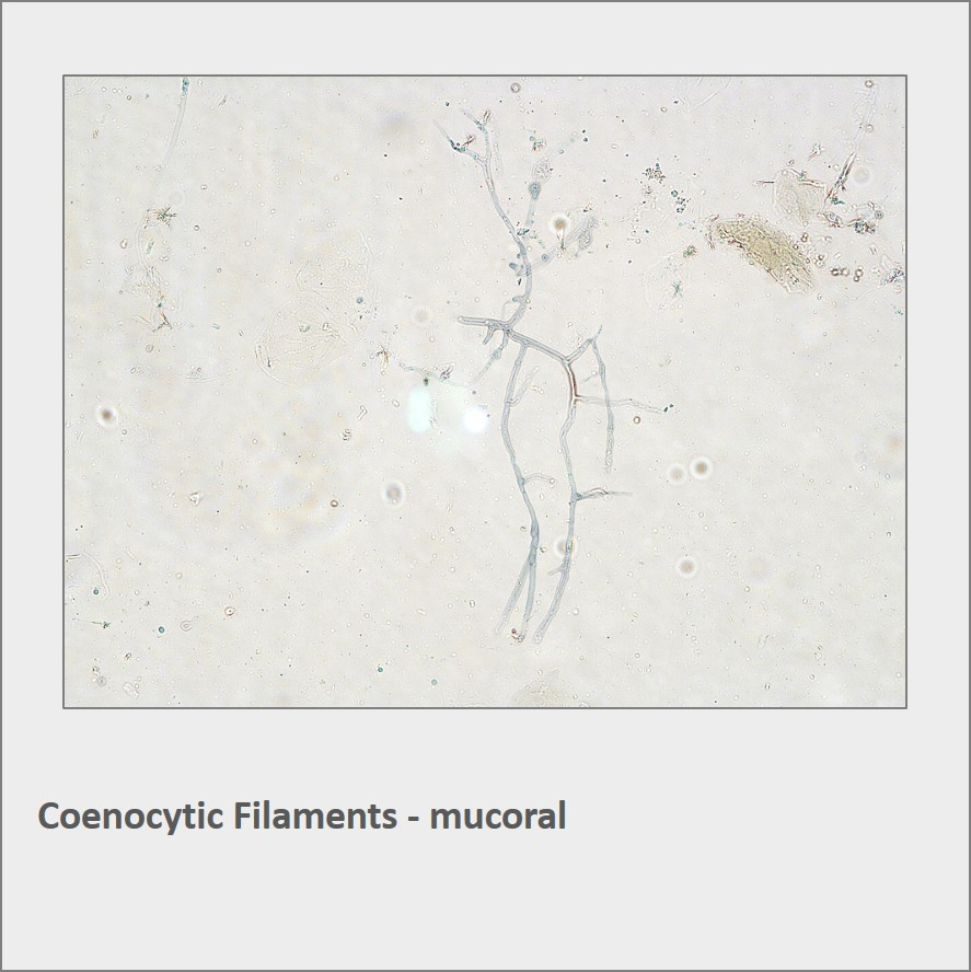 Coenocytic Filaments - mucoral