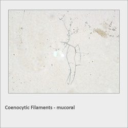 Coenocytic Filaments - mucoral