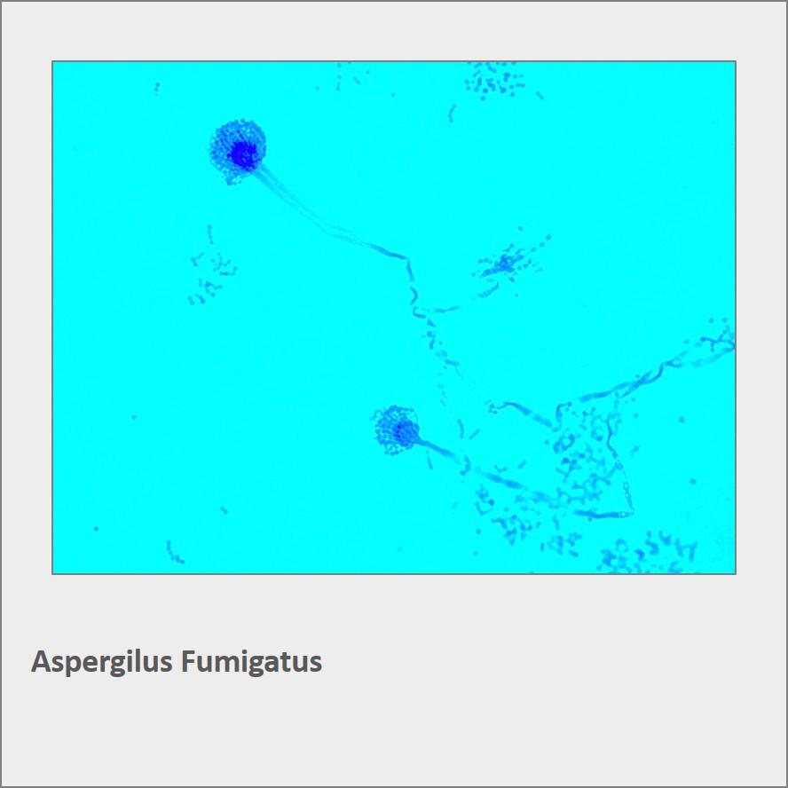 aspergilus fumigatus