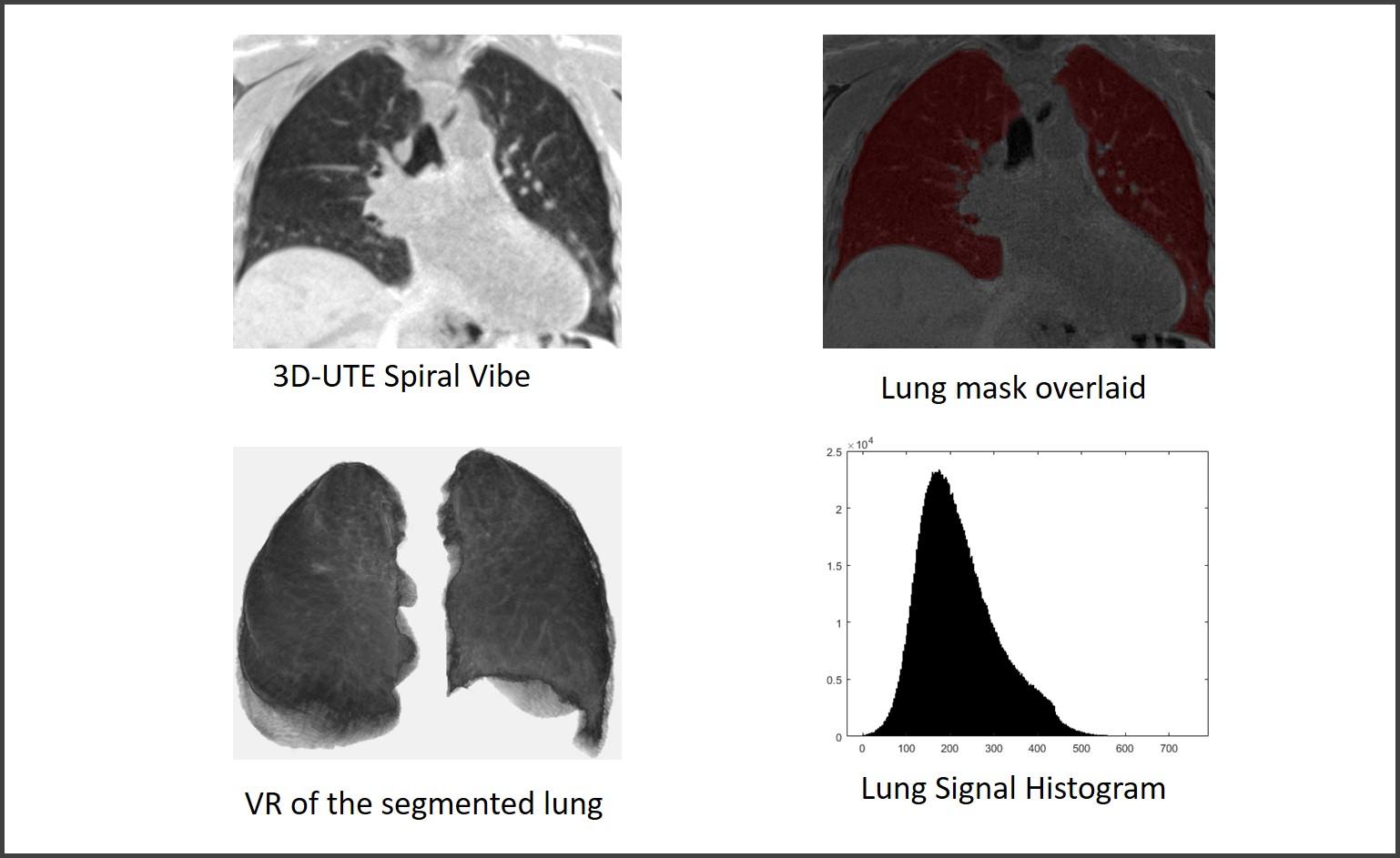 Lung imaging - emphysema