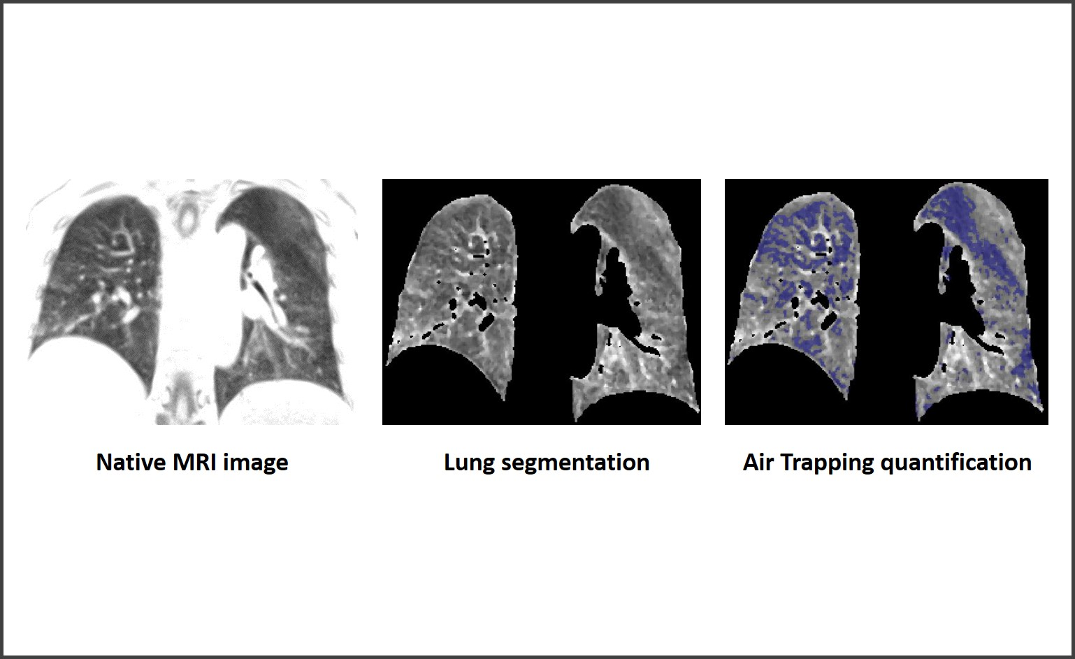 Lung imaging - 3D Air Trapping