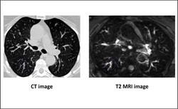 Lung imaging - T2 MRI
