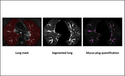 Lung imaging - inflammation