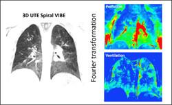 Lung imaging - Functional MRI