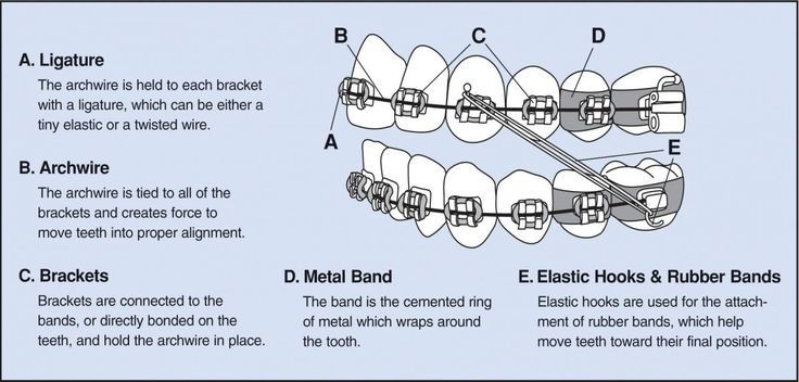 Diagram showing the different parts of braces