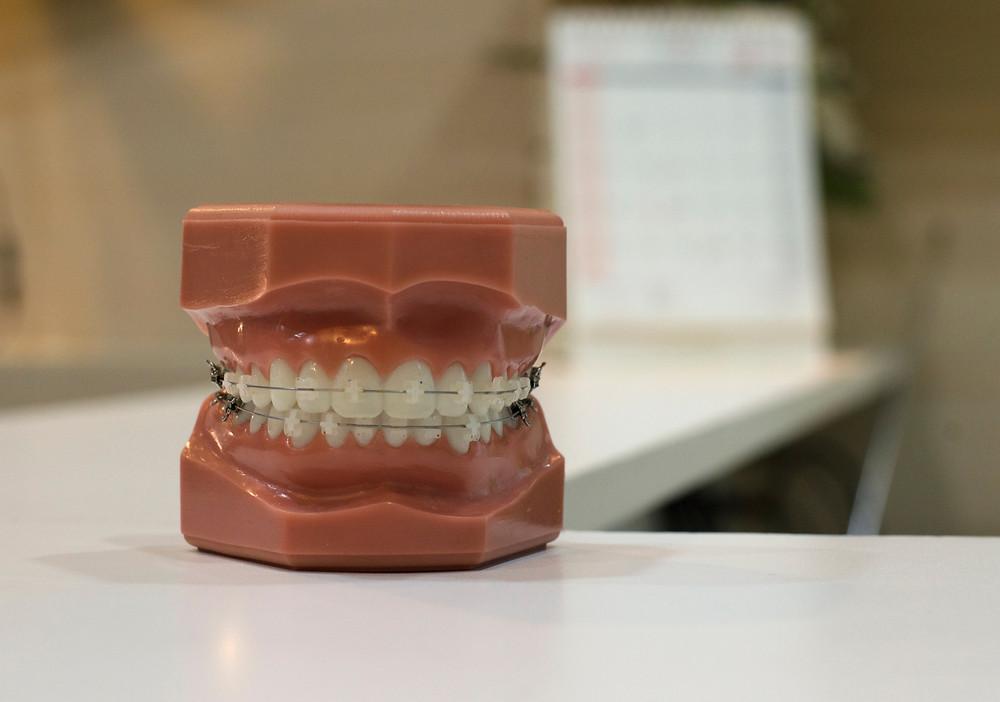 A model of braces in an office
