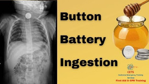 Button Batteries - A Caustic-ary Tale.