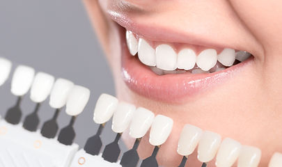 Teeth Bonding & whitening