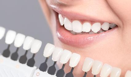 teeth bonding and whitening.jpg