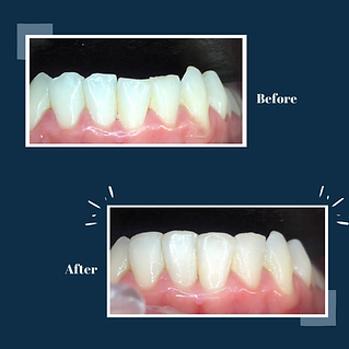 Dental Composite Bonding