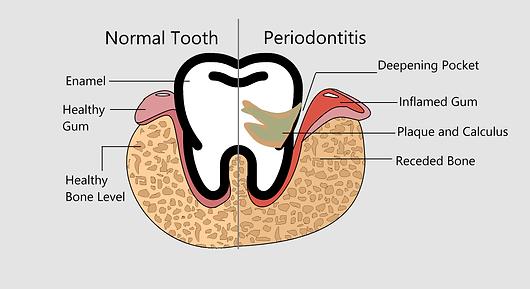 Gum Disease (Periodontitis)