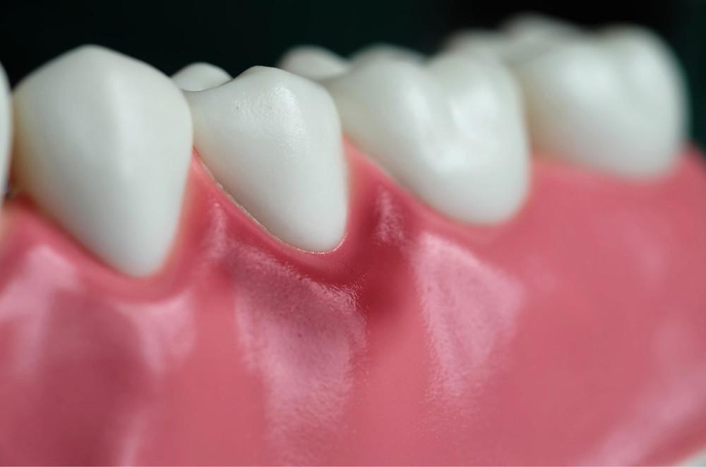 Gingivitis and Periodontist