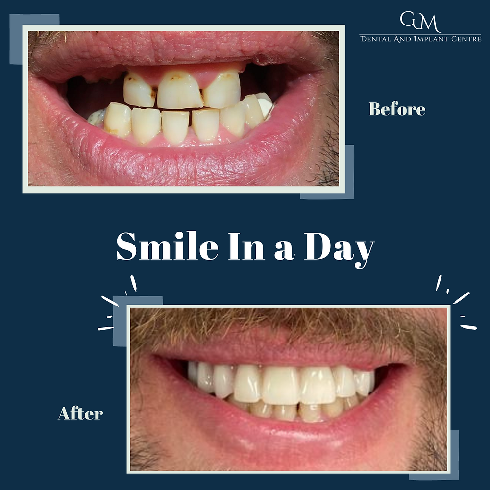 Smile in a Day / All-On-Four Treatment