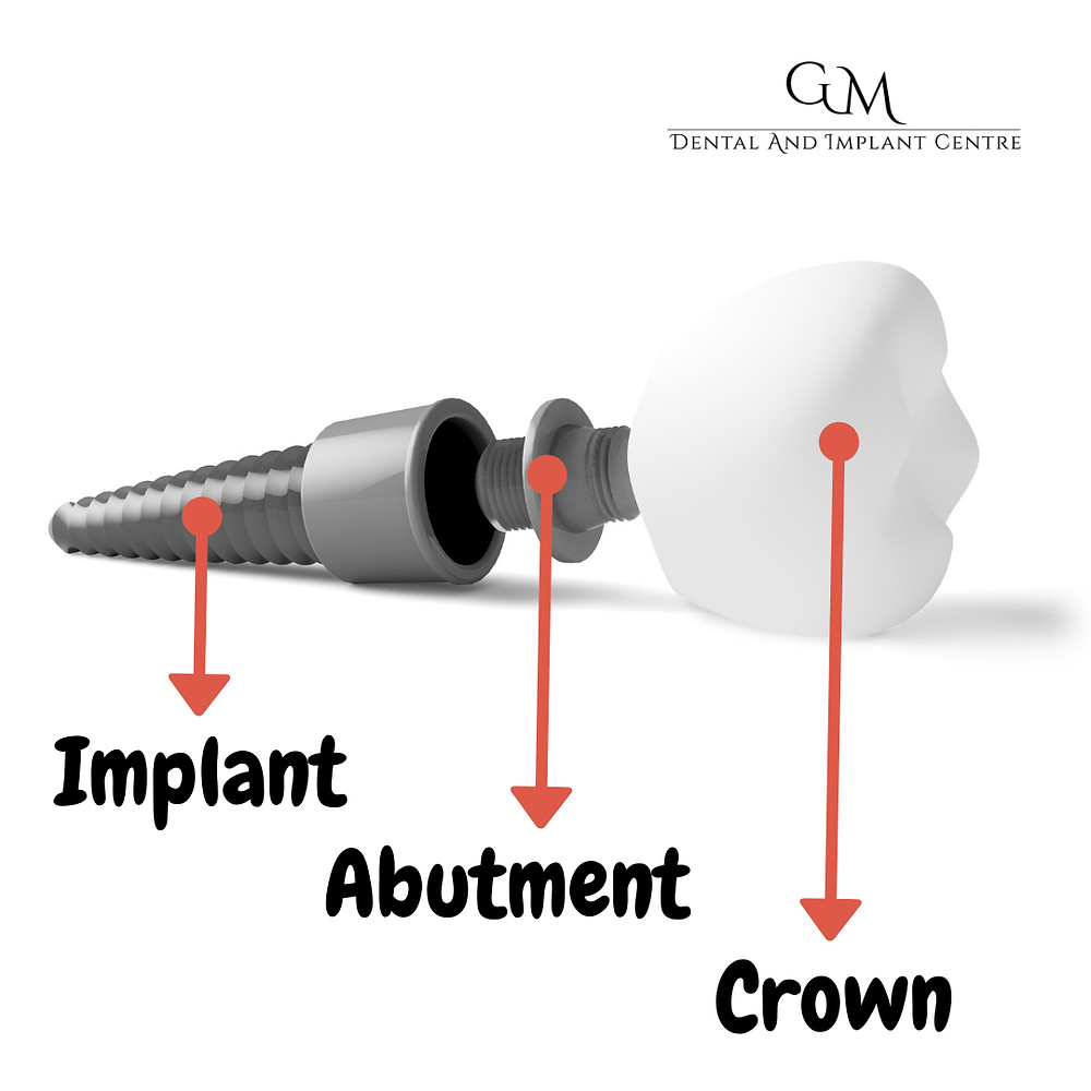 Dental Implant, the Abutment and Crown