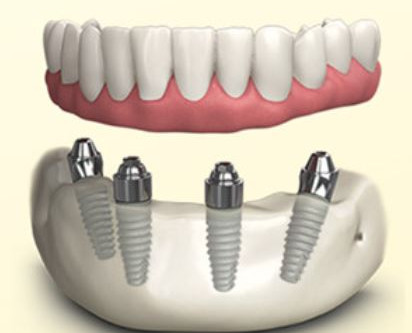 All-On-Four / Smile In A Day Dental Implant