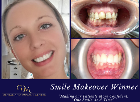 Smile Makeover Winner May 2020