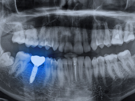 Is It Painful When Placing Dental Implants?