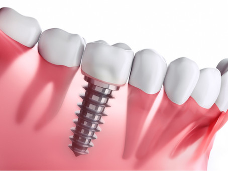 Dental Implants How Long Should They Last?