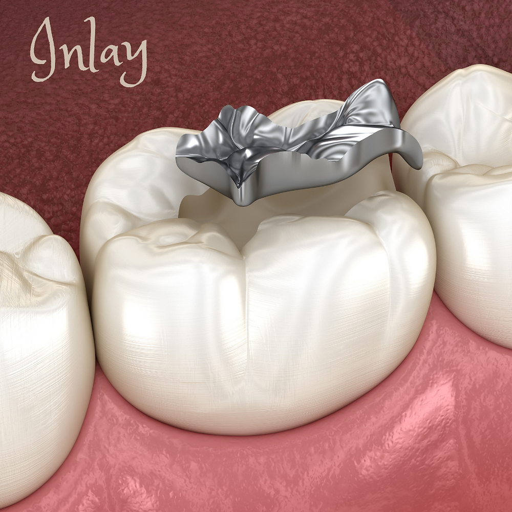 Dental Inlay Vs Outlay